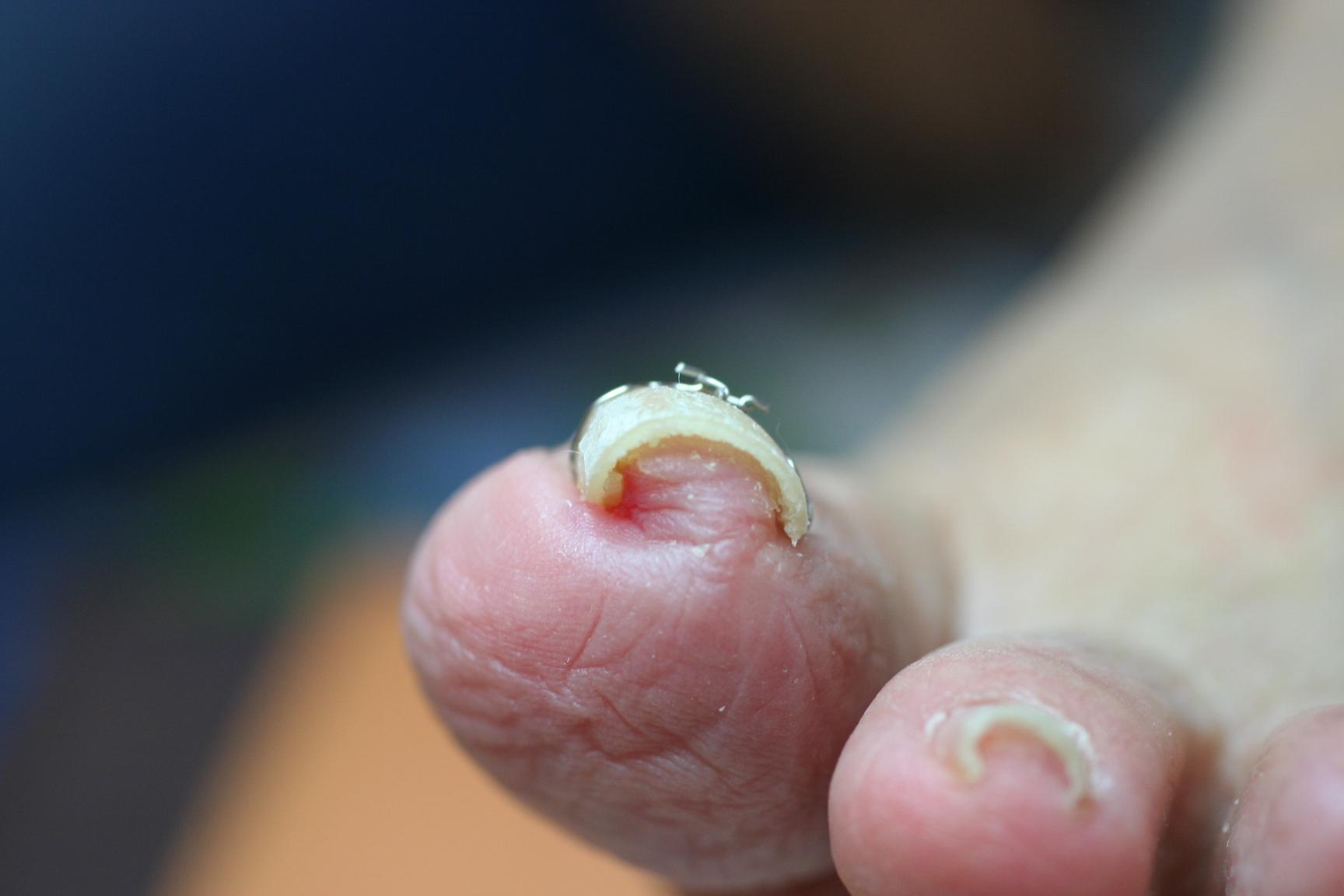 VHO巻き爪治療後(1回目)