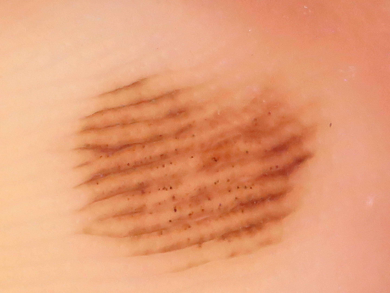 皮膚の良性腫瘍